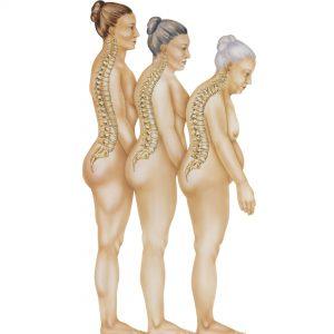 Tre kvinnokroppar som åldras och ryggraden blir allt mer krokig på grund av kalciumbrist