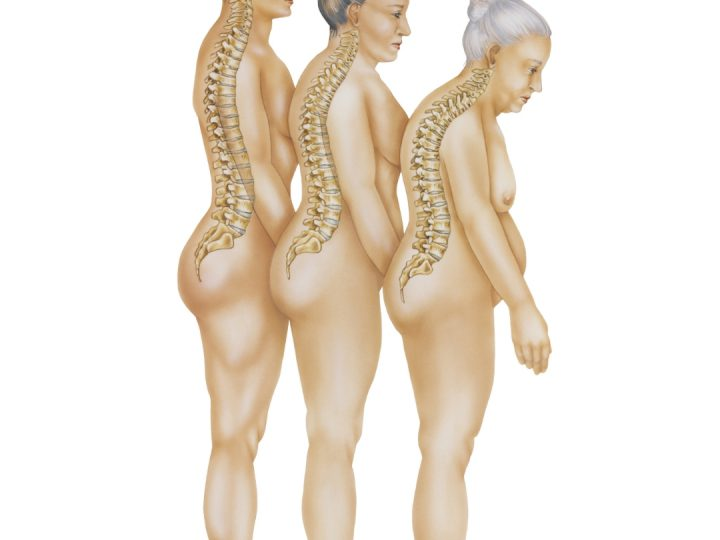 Benskörhet efter gastric bypass och gastric sleeve
