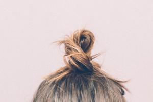 hårknut hårdavfall efter viktoperation